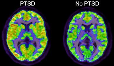 Brain image of PTSD